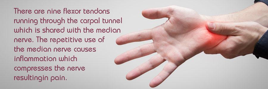 Endoscopic Carpal Tunnel